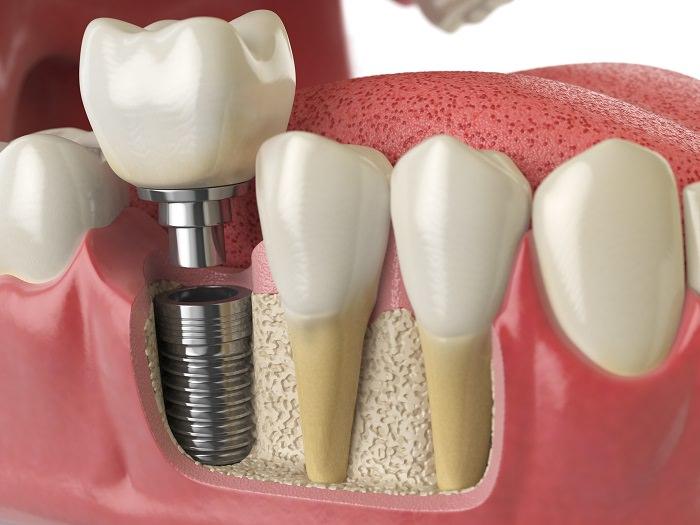 implante dental zaragoza